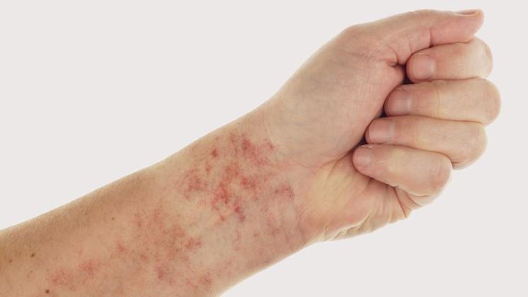 Folt a láb bőrén piros fotó, Herpesz - Herpes zoster