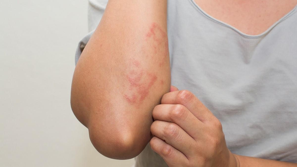 fotó a bőrön lévő kiütésről vörös foltok formájában, viszketéssel felnőtteknél