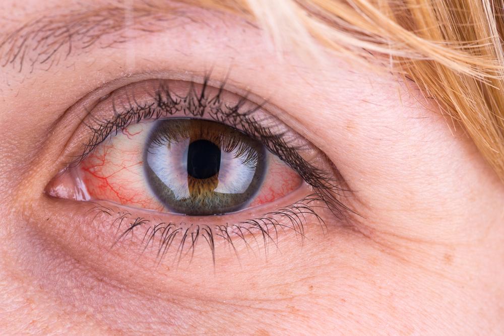 hogyan kell kezelni a szemhéj vörös foltját vörös foltok a száj körül és hámlás