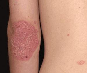 hogyan lehet eltávolítani a gyulladst a br pikkelysömörrel emelt vörös foltok a testen viszketnek