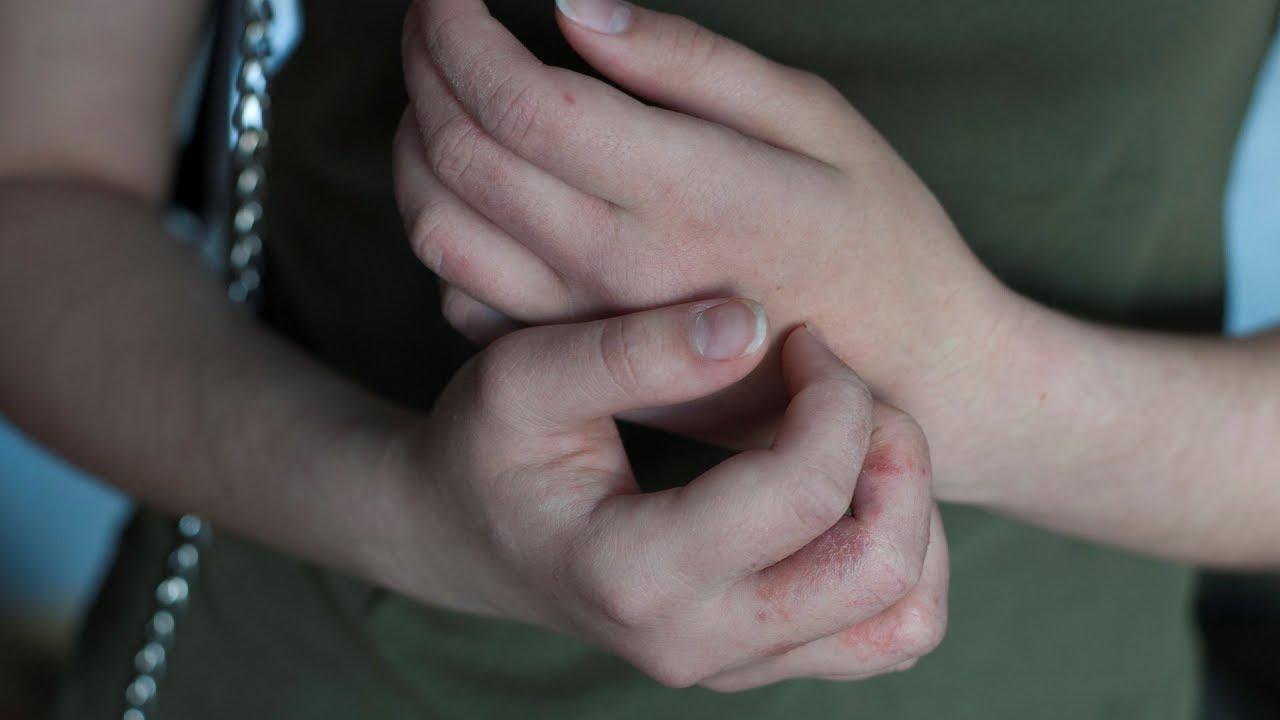 hogyan lehet megszabadulni a kezén lévő vörös foltoktól otthon a viszkető fej vörös foltokat okoz