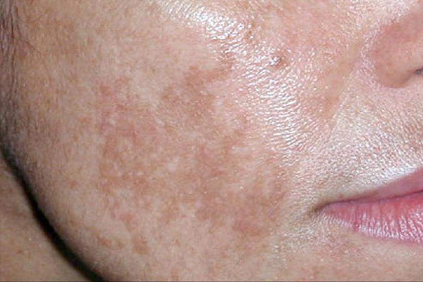 mit jelentenek az arcon lévő vörös foltok