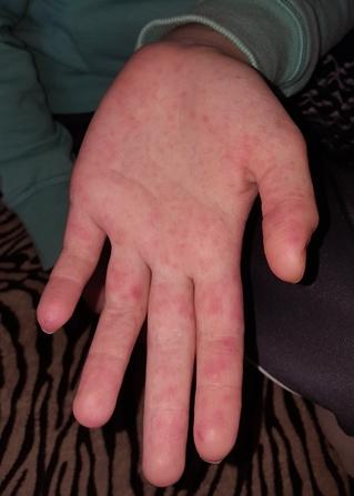 kis piros folt a kezén