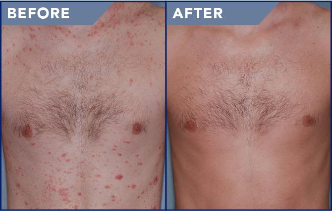 pikkelysömör kezelése bőrsapka krém