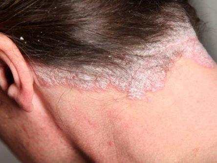 pikkelysömör orvosság új gyorsan gyógyítja a fejbőr pikkelysömörét