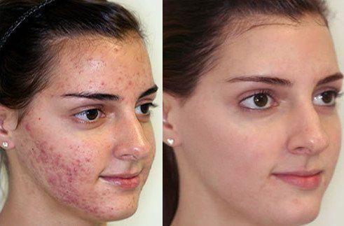 vörös foltok a hason és a hát alsó részén hogyan lehet fehéríteni az arcodat a vörös foltoktól