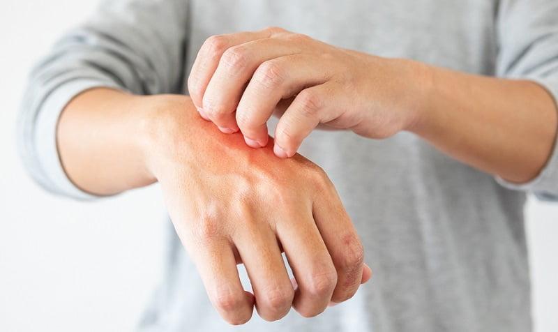 amikor meleg van, az arcát vörös foltok borítják gyógymódok pikkelysömörre a fejn