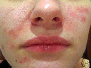 egy felnőtt ember arcán vörös folt hámlik vörös pontok és foltok a lábakon