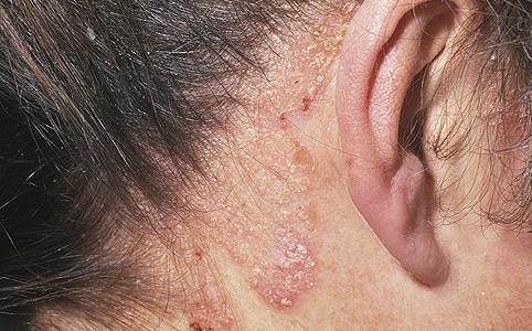 a fej pikkelysömörének hatékony kezelése népi gyógymódokkal nsp termkek pikkelysmr kezelsre