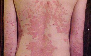 vörös foltokkal borított lábak és karok vörös folt a bőrön, piros ponttal