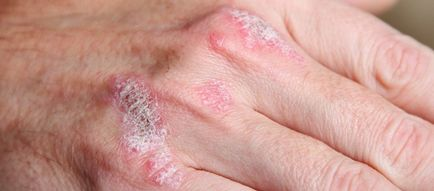 vörös foltok a lábakon vérrögök babérlevél pikkelysömör kezelése