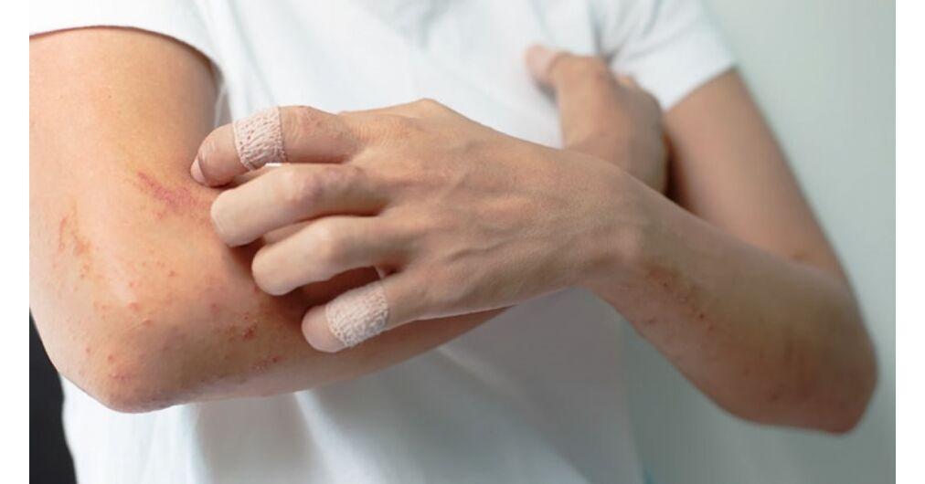pikkelysömör melyik krém jobb vörös foltok a könyökön és a kezeken