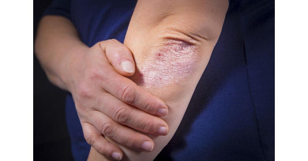 pikkelysömör melyik krém jobb test bőrbetegsége vörös foltok