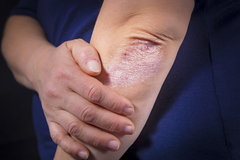 pikkelysömör és szódával való kezelése vörös folt a karon viszket kezelés