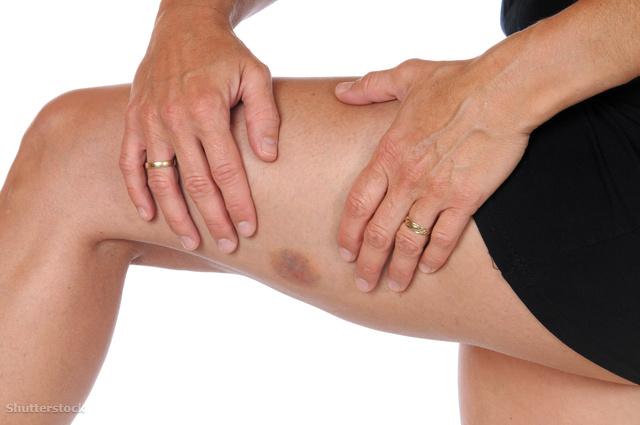 piros nagy folt a lábán forró orvostudomány férfiak pikkelysömör kezelése