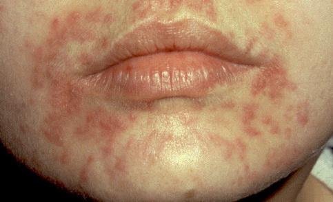 sürgősen távolítsa el a vörös foltokat az arcon lehet-e gygytani a pikkelysmr s hogyan
