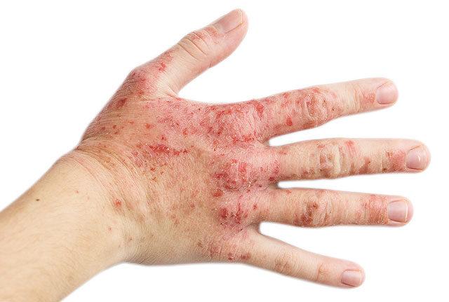 száraz vörös foltok a kezeken viszketnek pikkelysömör és műtéti kezelés