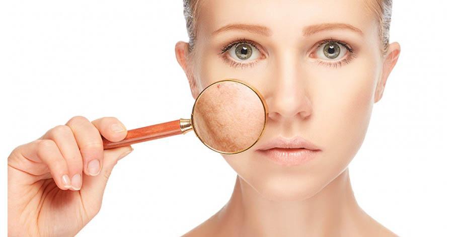 távolítsa el a vörös foltokat az arcon gyorsan pikkelysömör kezelésére