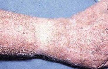 vörös folt a bőrön hámlik a kezelésről hogyan lehet gyógyítani a száraz pikkelysömör