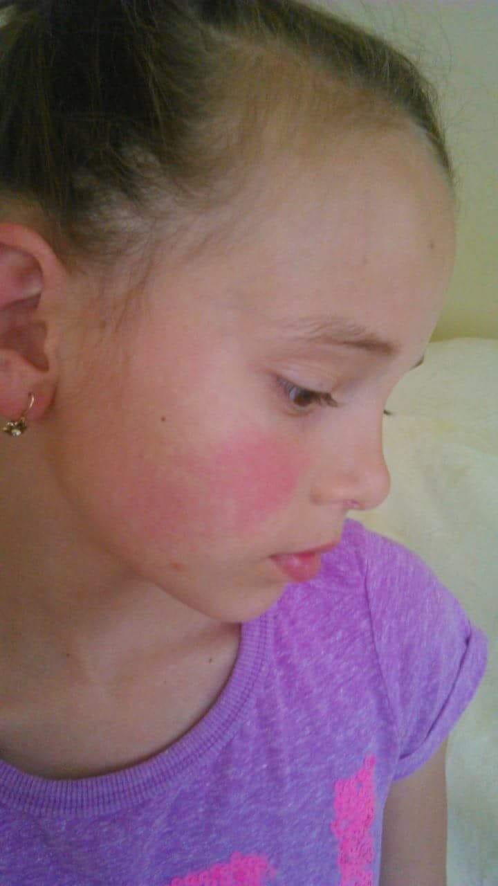 vörös folt hólyagokkal az arcon pikkelysömör fekete kömény kezelése