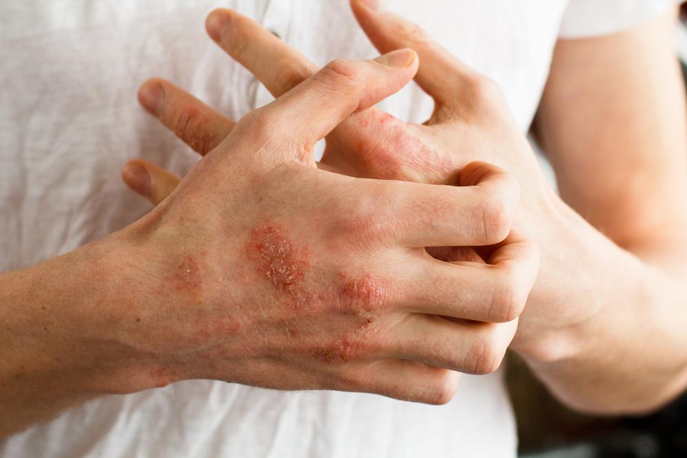 vörös folt tornyosul a bőr felett