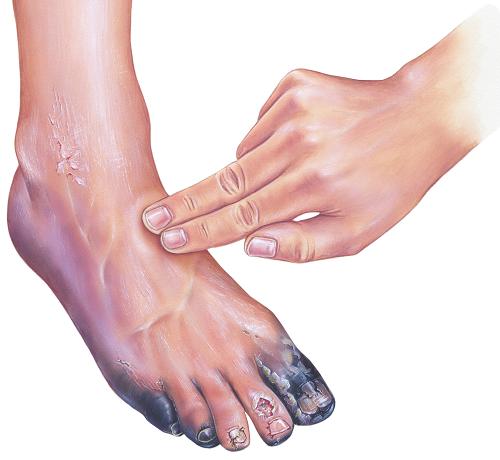 vörös foltok a lábakon cukorbetegséggel hogyan kell kezelni pikkelysömör plakkok a fejn hogyan kell kezelni
