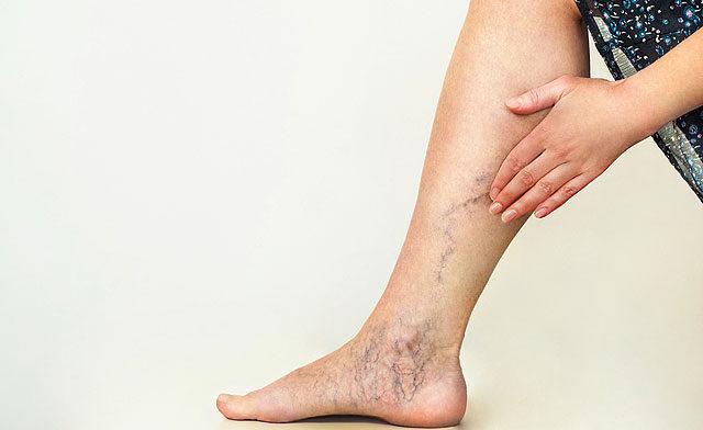 Dermazin krém pikkelysömörhöz vörös folt jelent meg a bőrön és növekszik