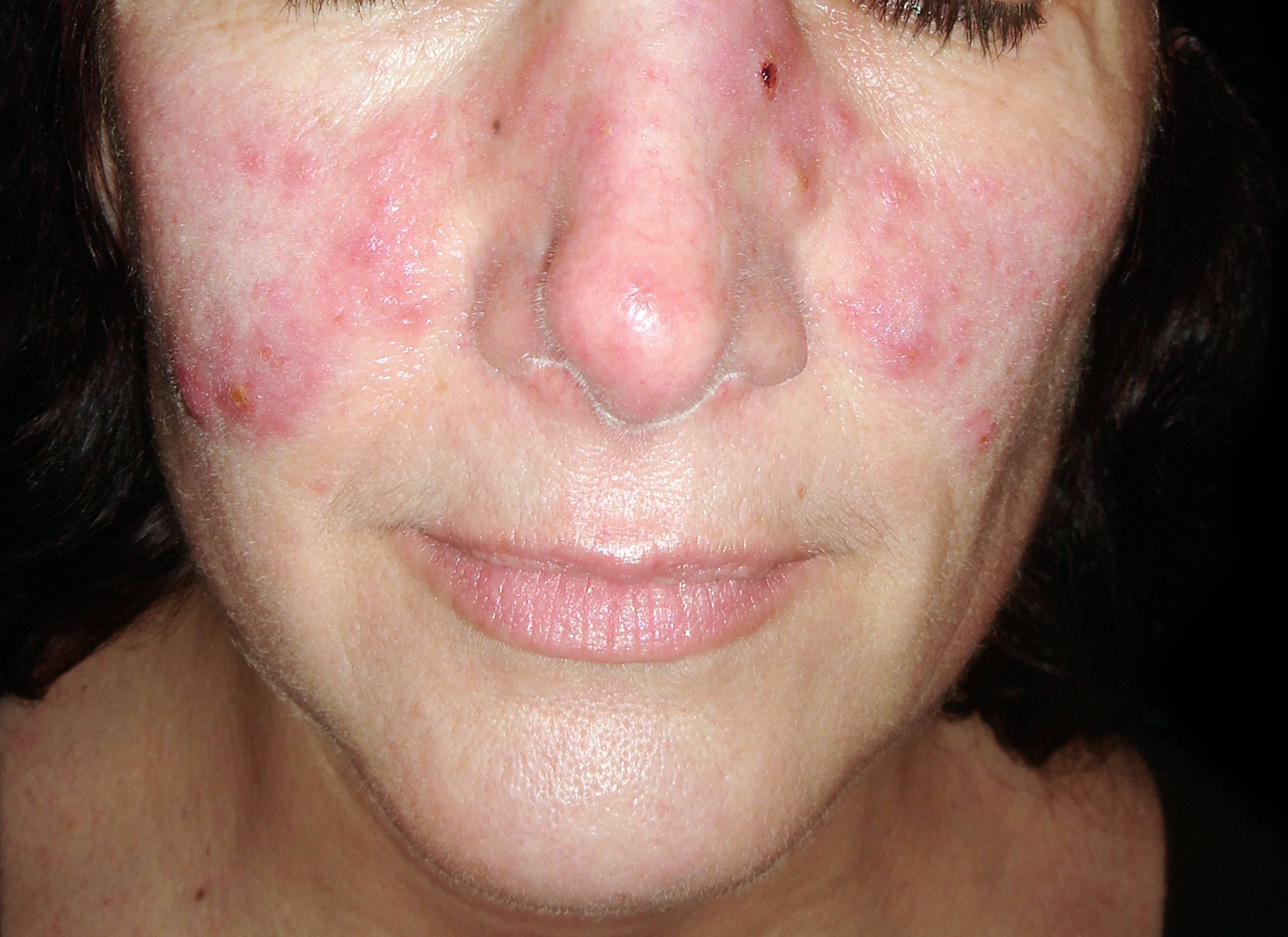 Miért a vörös foltok a szem alatt és körül: diagnózis és hatékony kezelés - Sérülések - November