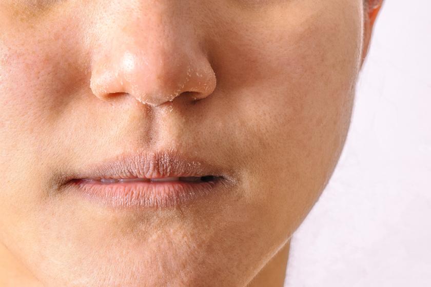 vörös foltok az arcon és a füleken pikkelysömör kezelése gyantával