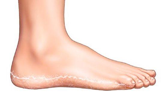 vörös foltok jelentek meg a lábak között, hogyan kell kezelni
