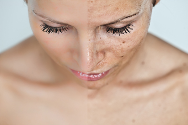 amelyből vörös foltok jelennek meg a kéz bőrén pikkelysömör kezelése dermatitis