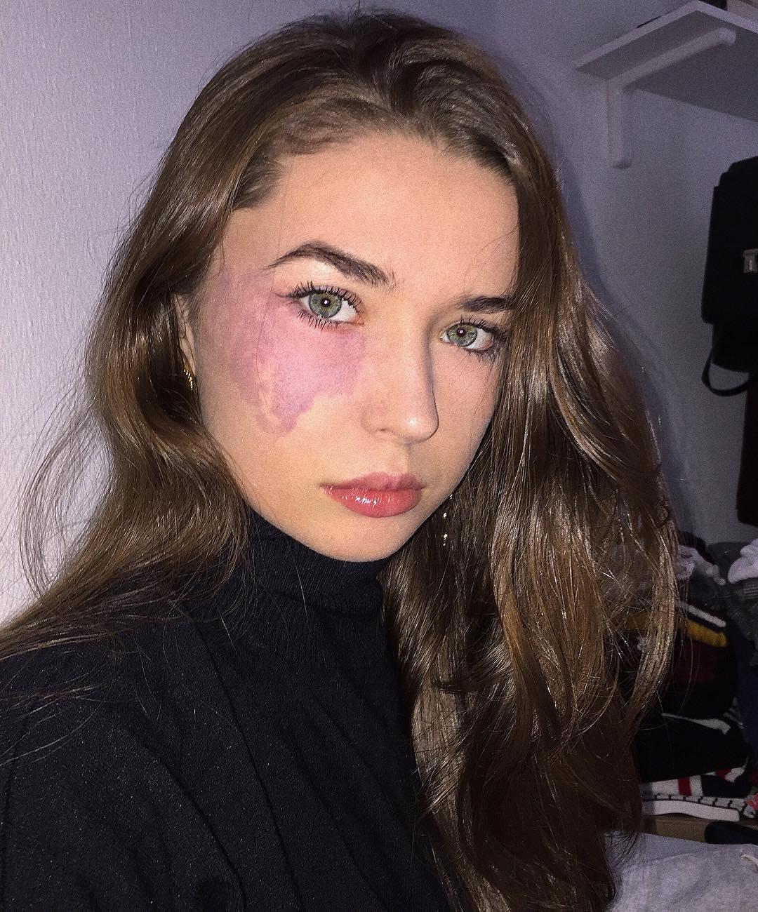 az arc tisztítása után a foltok pirosak leo pharma gyógyszerek pikkelysömörhöz