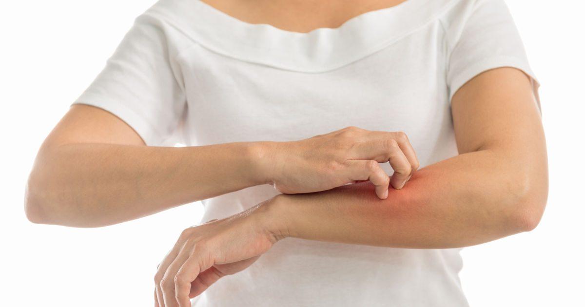 vörös foltok és apró pattanások a kezeken D-vitamin pikkelysömör kezelése