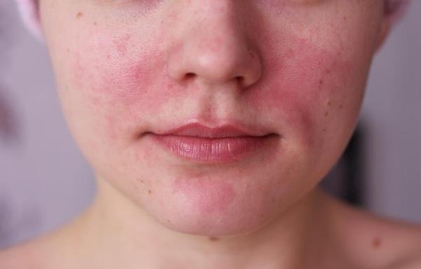 A nyakon vörös foltok hámozódnak Nyakon kiterjedt piros folt