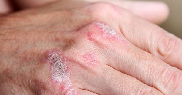a kezek bőrén lévő foltok vörös hámlanak a lábán egy folt növekvő vörös peremmel