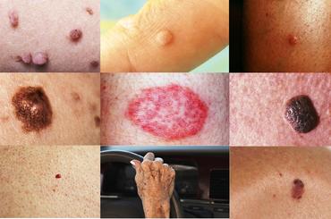hogyan lehet eltávolítani a vörös foltokat a streptoderma- ból