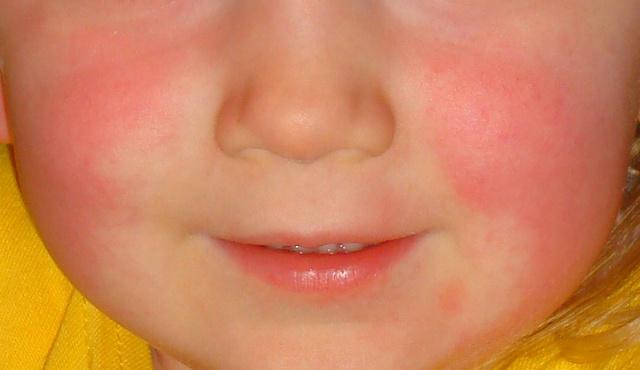 vörös foltok kerültek ki az arcon