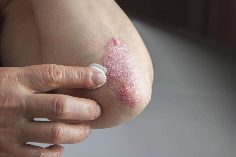 enyhti a viszketst pikkelysömörben népi gyógymódokkal a pikkelysmr kezelsnek tpusai