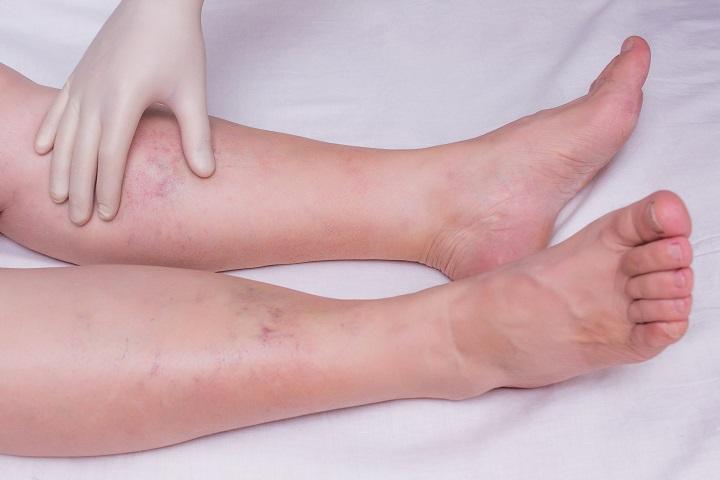 lábak viszketnek és vörös foltok jelennek meg a kezelés)