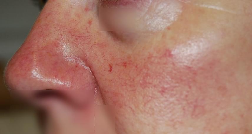 vörös foltok az arc ajka körül