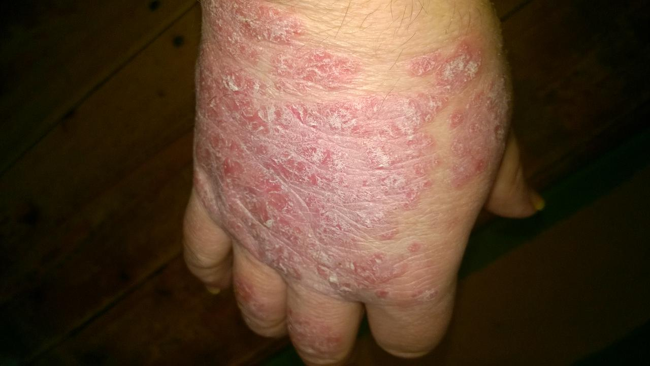 pikkelysömör kezelése prednizonnal kiütés a bőrön vörös foltok formájában az arcon felnőtt fotókon