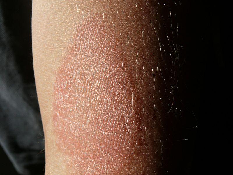 vörös foltok az ujjakon okoznak