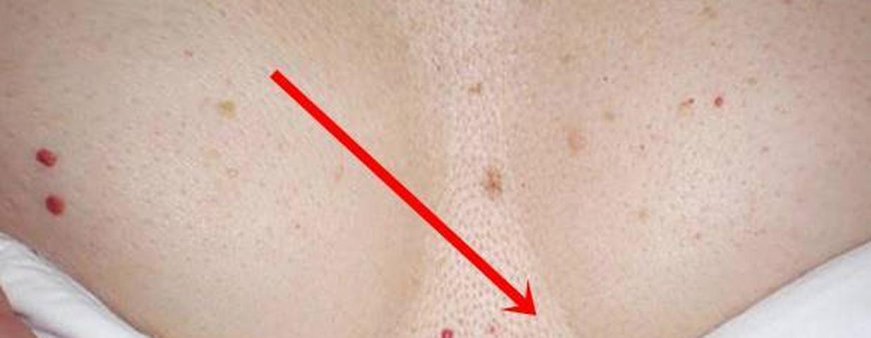Élénkpiros folt a bőrön