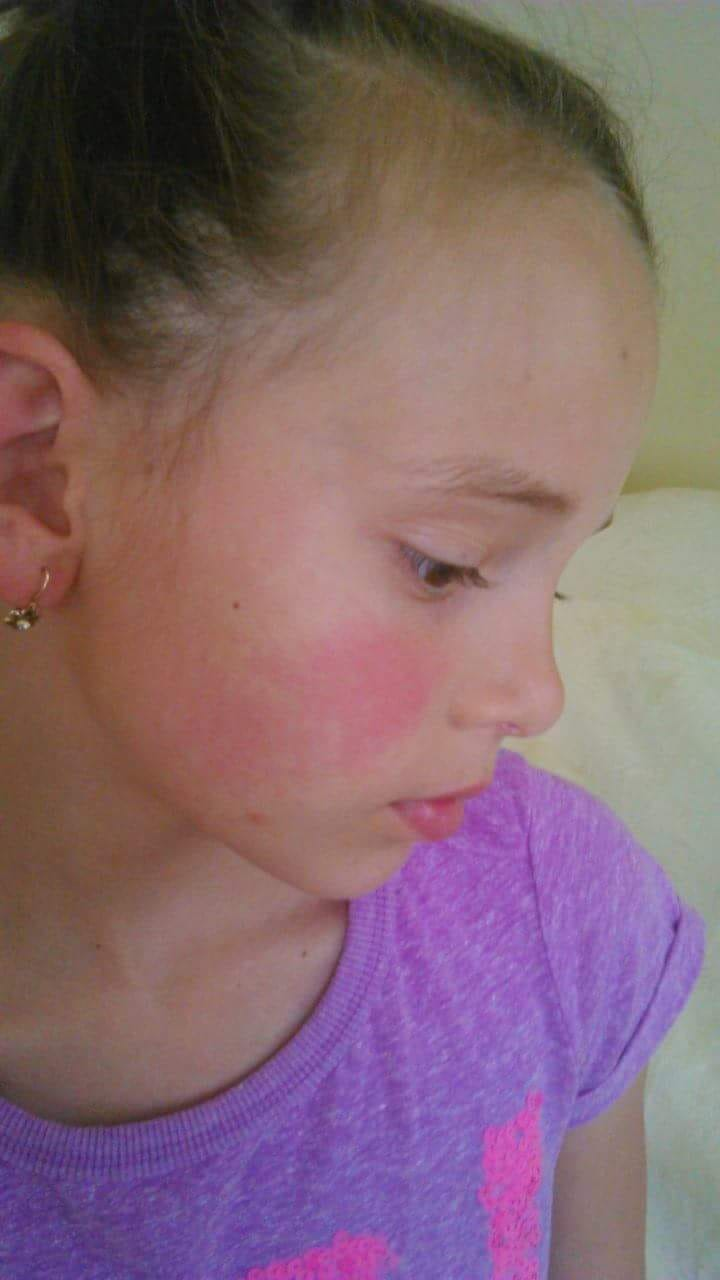 vörös foltok az arcon kezelést okoznak a fejbőr viszket és vörös foltok