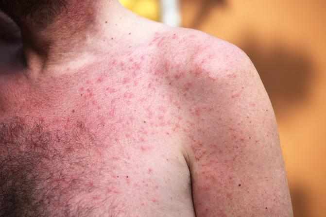 Vörös foltok a bőrön mi ez és hogyan kell kezelni. Rozácea - az arcon levő piros foltok kezelése