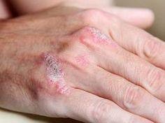 herbalists pikkelysömör kezelése a fenekén vörös folt viszket