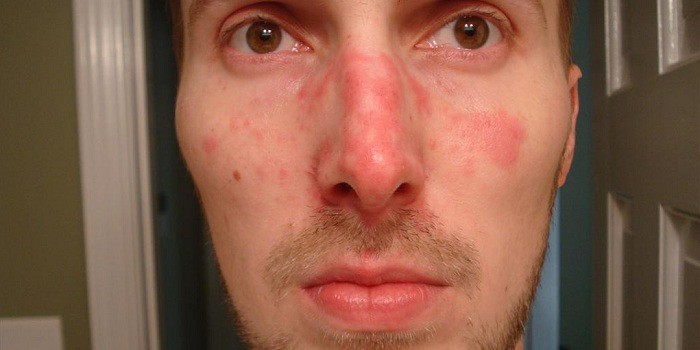 vörös foltok kezelése az arcon fotó