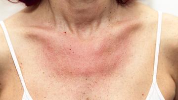 vörös foltok az orron, hogyan lehet eltávolítani őket vörös foltok a karok és a nyak redőin