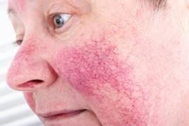 irritáció az arcon a száj körül vörös foltok formájában