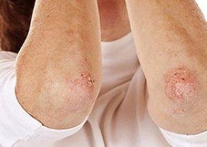 psoriasis vulgaris stacionárius stádiumú kezelés
